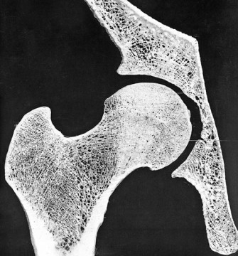 Section through the head region of the femur, the thighbone. Image credit: Biomimetics in Architecture: Architecture of Life and Buildings